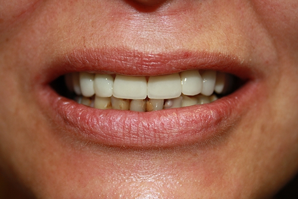 зъболекар-михов-зъбна-естетика