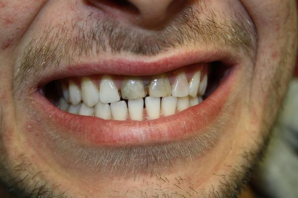 зъболекар-михов-сливен-зъбна-естестика