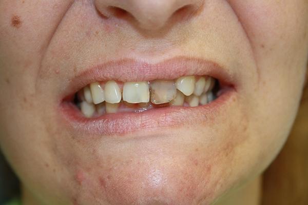 зъболекар-михов-сливен-зъбна-естестика5