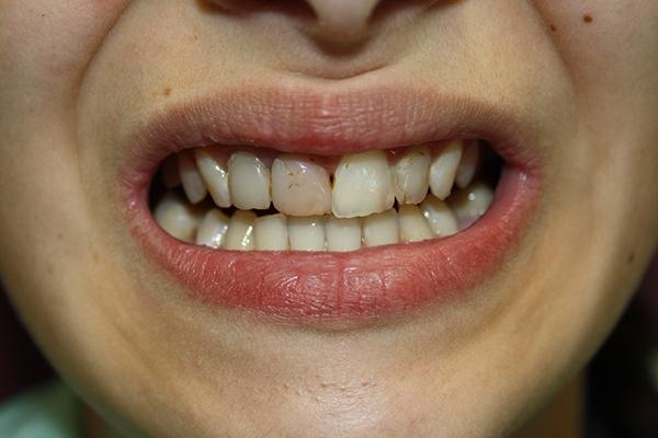 зъболекар-михов-сливен-фасети