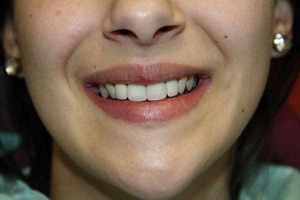 зъболекар-михов-сливен-фасети1