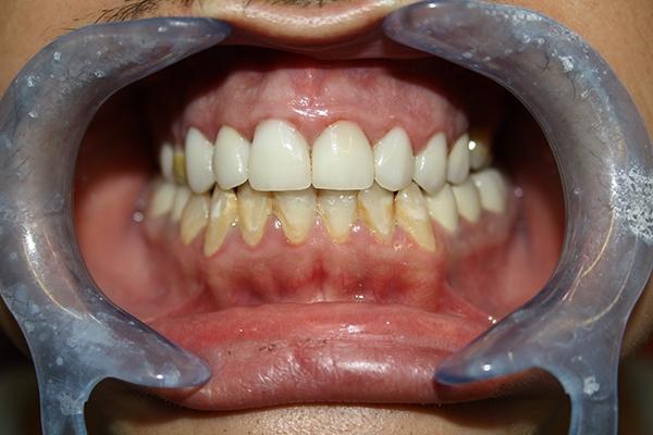 зъболекар-михов-сливен-ямбол
