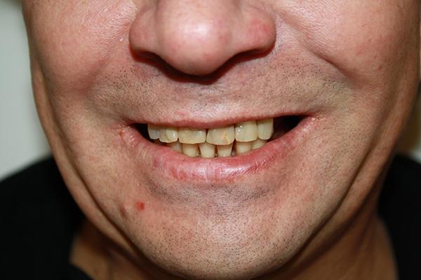 зъболекар-михов-сливен-ямбол2