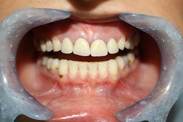 зъболекар-михов-сливен