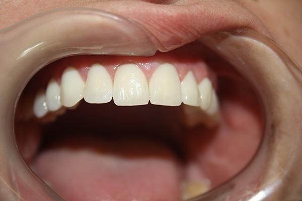 михов-зъболекар-сливен1
