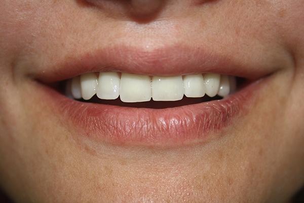 михов-зъболекар-сливен2
