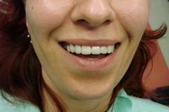 зъболекар-доктор-михов-сливен-ямбол