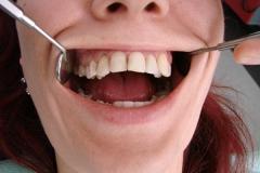 зъболекар-доктор-михов