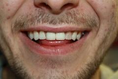 зъболекар-михов-сливен-зъбна-естестика2
