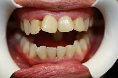 зъболекар-михов-сливен-зъбна-естестика3