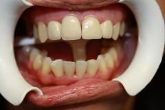 зъболекар-михов-сливен-зъбна-естестика4