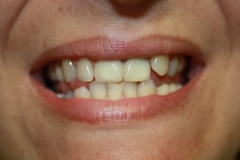 зъболекар-михов-сливен-зъбна-естестика6