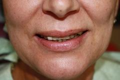 зъболекар-михов-сливен-зъбна-естетика