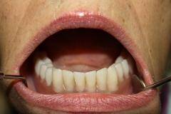 зъболекар-михов-сливен-зъбни-импланти2