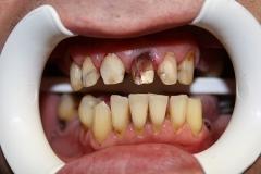 зъболекар-михов-сливен-ямбол1