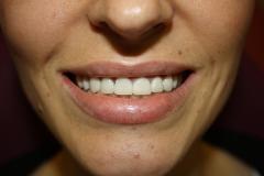 зъболекар-сливен-михов