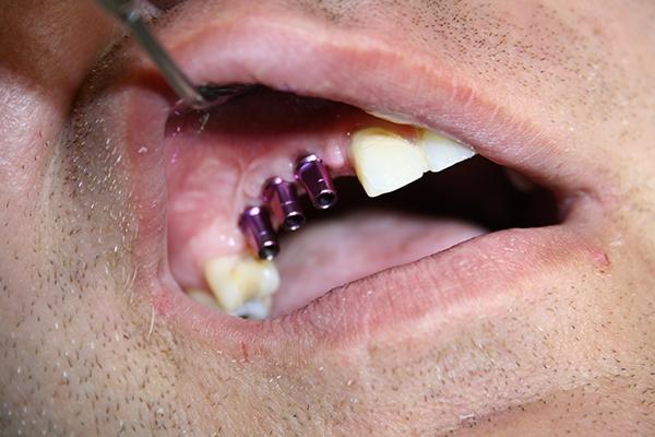 зъболекар-михов-сливен-зъбни-импланти1