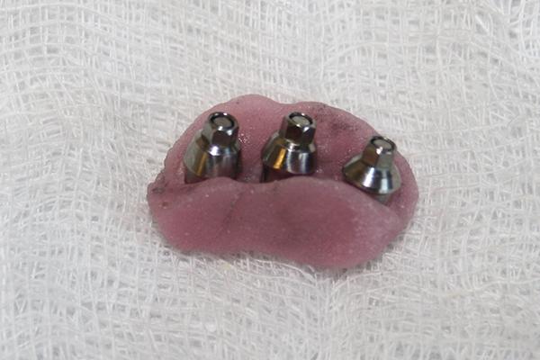 зъболекар-михов-сливен-зъбни-импланти3
