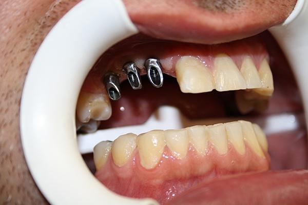 зъболекар-михов-сливен-зъбни-импланти4