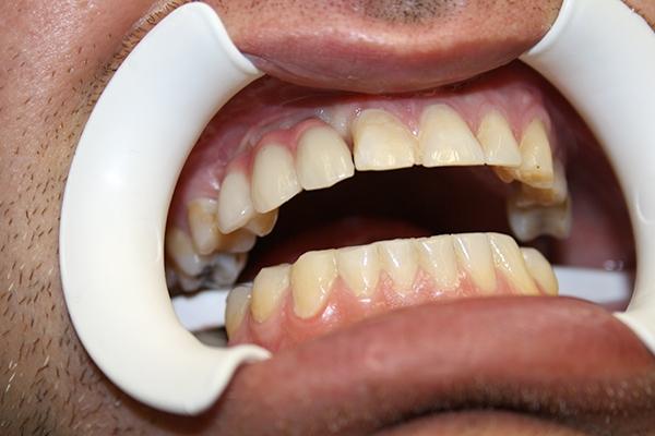 зъболекар-михов-сливен-зъбни-импланти6