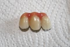 зъболекар-михов-сливен-зъбни-импланти5