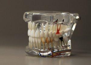 зъболекар, ямбол, сливен доктор михов