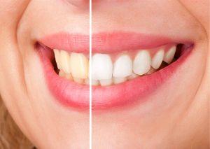избелване на зъби, ямбол, сливен доктор михов