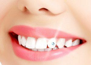 зъбна бижутерия, зъболекар, сливен, ямбол