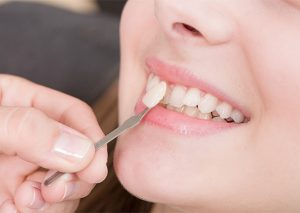 зъбни фасети, зъболекар, сливен, ямбол